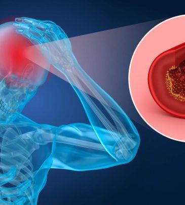 Long Term Anticoagulation in Stroke Prevention
