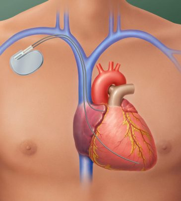 Understanding the Role of Surgical Interventions in Cardiac Arrythmias